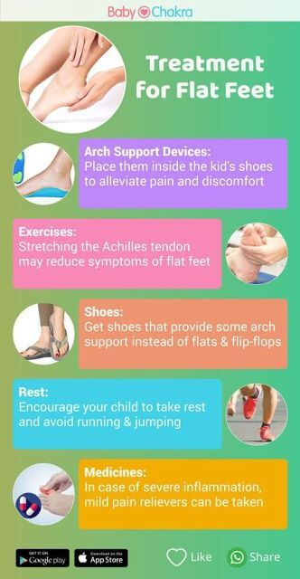 how to treat your flat feet